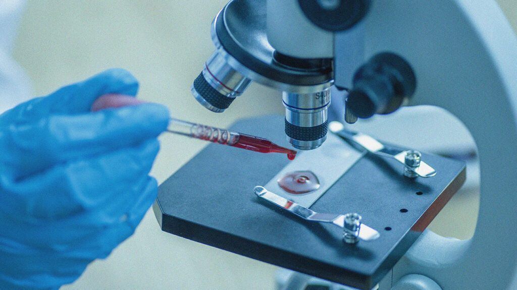Beberapa Pasien COVID-19 Memiliki Risiko Pendarahan Yang Lebih Tinggi